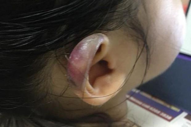 Đón con gái 3 tuổi từ nhà trẻ về, cha mẹ chết lặng khi phát hiện tai con bị sưng phồng biến dạng - Ảnh 1.