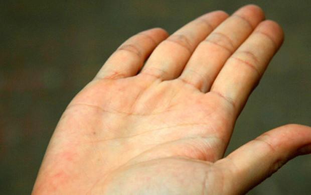 Nhìn màu sắc lòng bàn tay để nhận biết tình trạng sức khoẻ hiện tại của bạn - Ảnh 3.