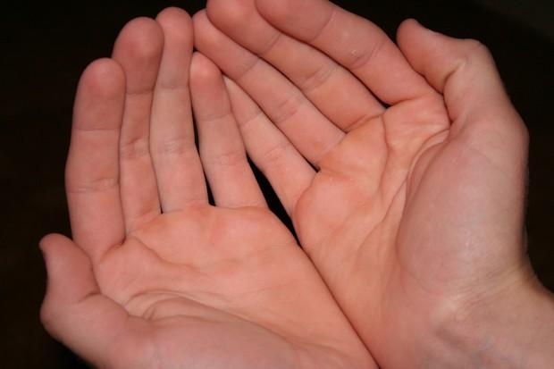 Nhìn màu sắc lòng bàn tay để nhận biết tình trạng sức khoẻ hiện tại của bạn - Ảnh 4.