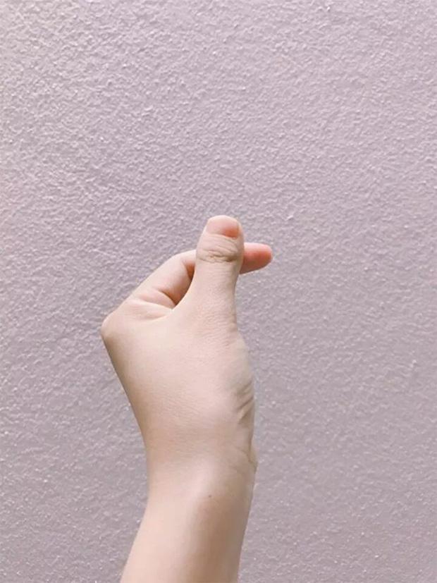 Cư dân mạng thi nhau khoe ngón tay độc lạ, nếu không nói trước thì cứ ngỡ là ngón chân cái - Ảnh 4.
