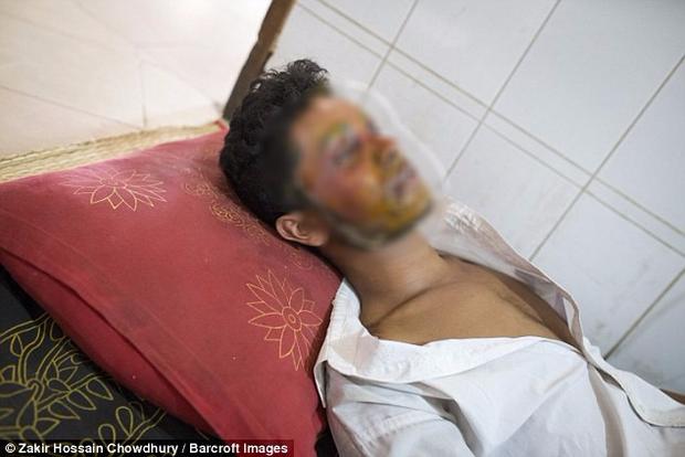 Từ chối lời tỏ tình của bạn gái 16 tuổi, nam thanh niên bị tạt axit tới biến dạng gương mặt - Ảnh 4.