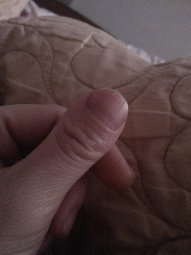 Cư dân mạng thi nhau khoe ngón tay độc lạ, nếu không nói trước thì cứ ngỡ là ngón chân cái - Ảnh 9.