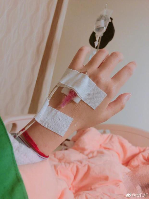 Thiên kim xứ Đài An Dĩ Hiên mang thai ngoài tử cung, phẫu thuật gấp để bảo toàn tính mạng - Ảnh 2.