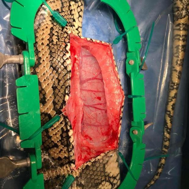Chú trăn đi kiếm ăn nhưng nuốt nhầm chiếc dép, phải đi phẫu thuật để lấy ra - Ảnh 6.