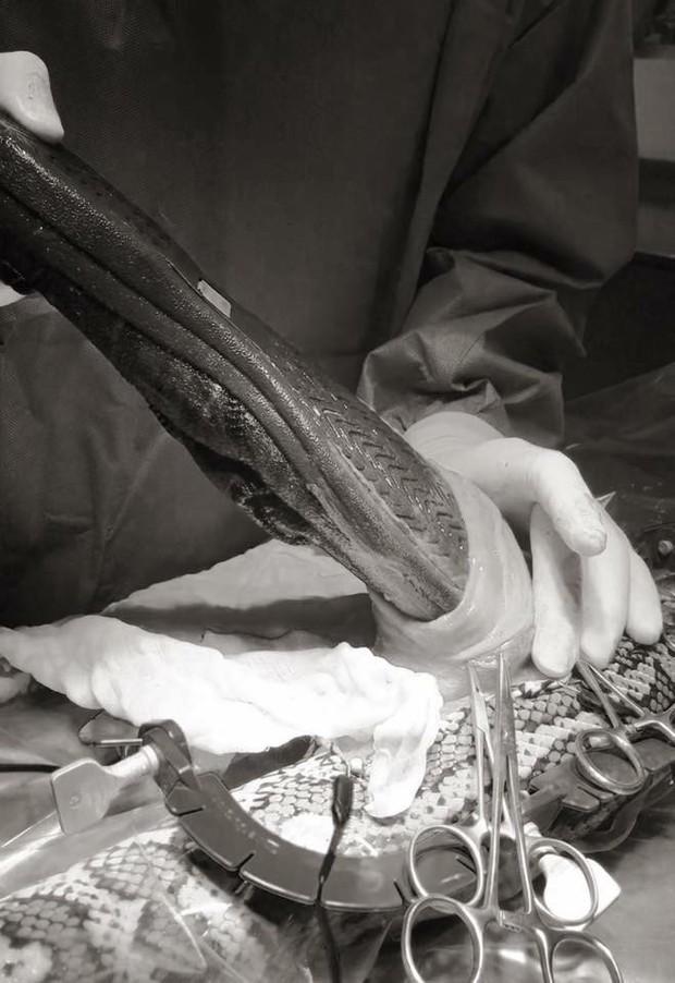Chú trăn đi kiếm ăn nhưng nuốt nhầm chiếc dép, phải đi phẫu thuật để lấy ra - Ảnh 8.