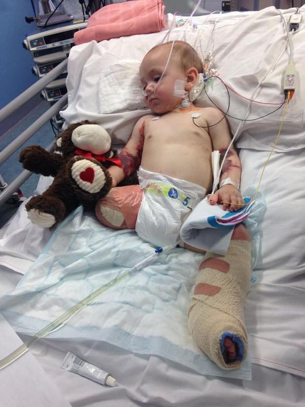 Cứ ngỡ con chỉ bị cảm lạnh, mẹ chết lặng khi bác sĩ yêu cầu cắt bỏ một chân của bé để bảo toàn mạng sống - Ảnh 2.