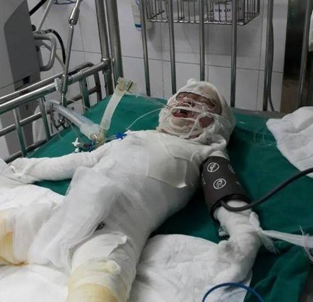 Rơi vào hố vôi đang sôi, cháu bé 2 tuổi bị bỏng quá nặng dẫn tới tử vong - Ảnh 1.