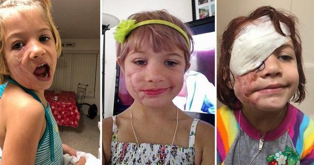 Bị chó cắn đến rách mặt, cô bé 6 tuổi mỗi ngày đều chụp ảnh selfie để học cách chấp nhận diện mạo mới của mình - Ảnh 1.