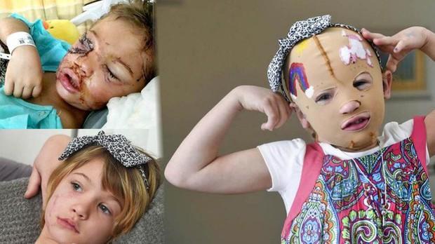 Bị chó cắn đến rách mặt, cô bé 6 tuổi mỗi ngày đều chụp ảnh selfie để học cách chấp nhận diện mạo mới của mình - Ảnh 3.