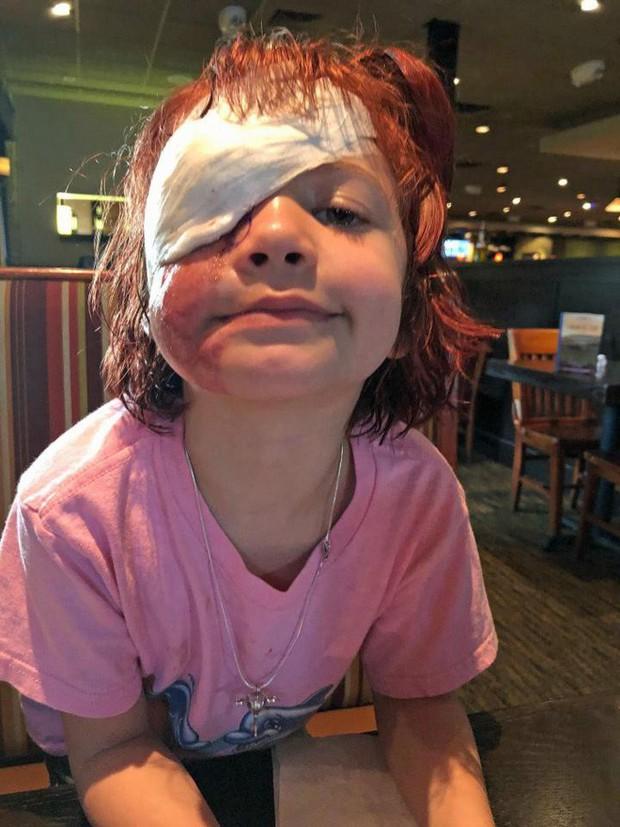 Bị chó cắn đến rách mặt, cô bé 6 tuổi mỗi ngày đều chụp ảnh selfie để học cách chấp nhận diện mạo mới của mình - Ảnh 4.