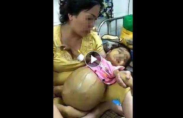 Cảnh báo: Bé gái ung thư tụy đã mất 3 tháng vẫn bị kẻ xấu nhẫn tâm đưa hình ảnh lên mạng trục lợi - Ảnh 1.
