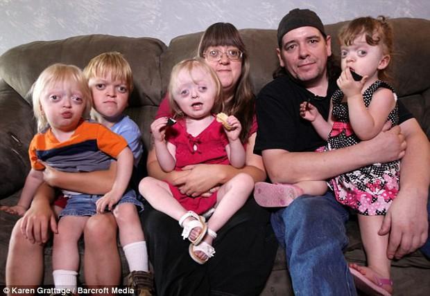Bà mẹ 4 con bị bêu riếu, trở thành trò cười của cư dân mạng bởi liên tục mang thai và truyền cho con căn bệnh biến dạng mặt - Ảnh 1.