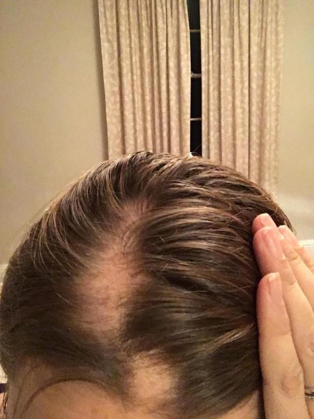 Chị em làm đám cưới đừng lo lắng quá, người phụ nữ này đã rụng sạch tóc vì căng thẳng chuẩn bị cho ngày trọng đại - Ảnh 2.