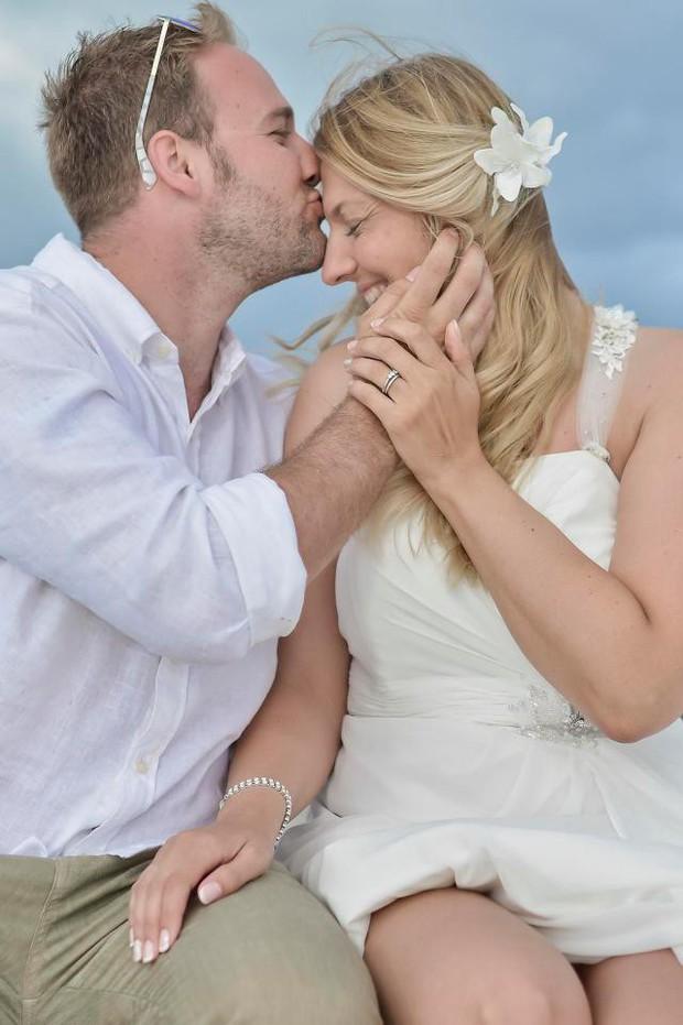 Chị em làm đám cưới đừng lo lắng quá, người phụ nữ này đã rụng sạch tóc vì căng thẳng chuẩn bị cho ngày trọng đại - Ảnh 4.