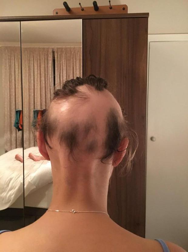 Chị em làm đám cưới đừng lo lắng quá, người phụ nữ này đã rụng sạch tóc vì căng thẳng chuẩn bị cho ngày trọng đại - Ảnh 5.