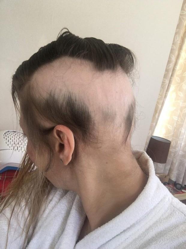 Chị em làm đám cưới đừng lo lắng quá, người phụ nữ này đã rụng sạch tóc vì căng thẳng chuẩn bị cho ngày trọng đại - Ảnh 6.