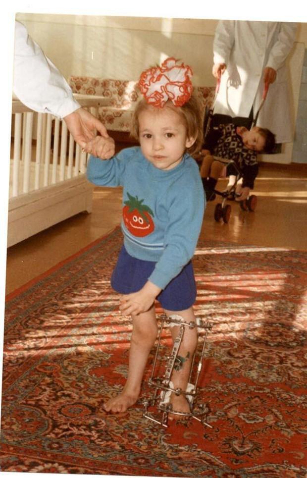 Năm 8 tuổi, cô bé bị cắt đi đôi chân, 15 năm sau điều không ai ngờ đã xảy ra - Ảnh 1.