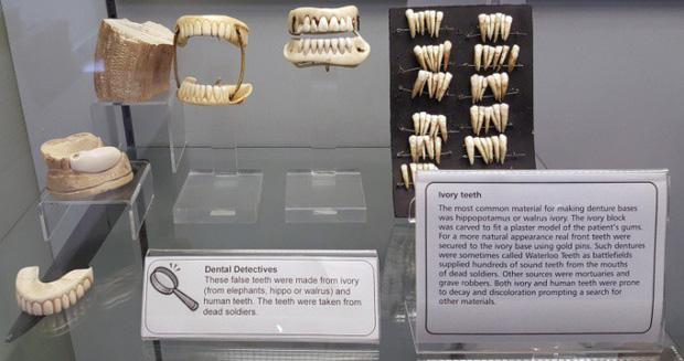 Nhổ răng bằng kìm, răng giả làm từ cao su... và sự thật bảo tàng nha khoa rùng rợn nhất nước Anh có gì? - Ảnh 7.
