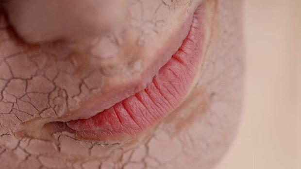 Lười dưỡng ẩm mỗi ngày, bạn không ngờ làn da sẽ phải chịu những tác hại này - Ảnh 1.