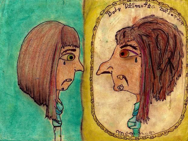 8 bí mật bạn nên biết về hội chứng sợ xấu khiến ai nghe cũng phải dè chừng - Ảnh 4.