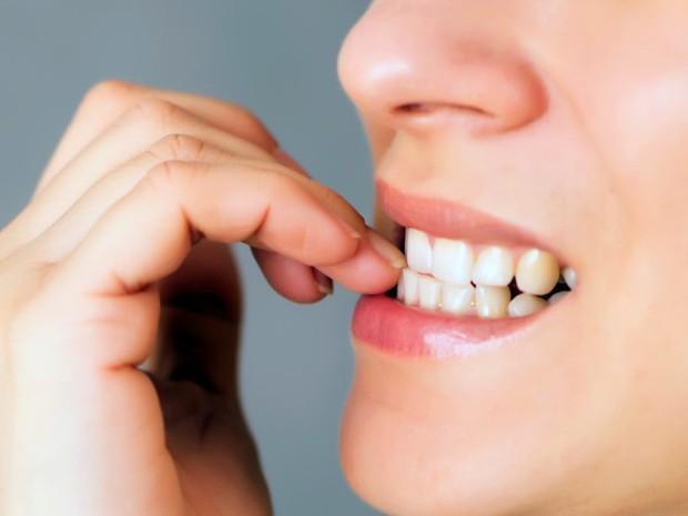 Những biện pháp này sẽ giúp bạn ngăn ngừa thói quen cắn móng tay rất hiệu quả - Ảnh 1.