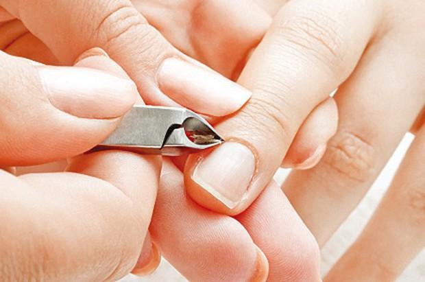 Những biện pháp này sẽ giúp bạn ngăn ngừa thói quen cắn móng tay rất hiệu quả - Ảnh 3.