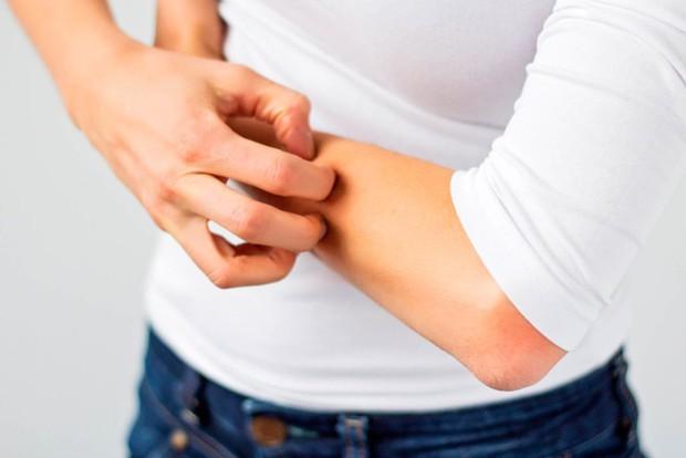Thận của bạn có thể đang âm thầm kêu cứu với các triệu chứng này - Ảnh 1.