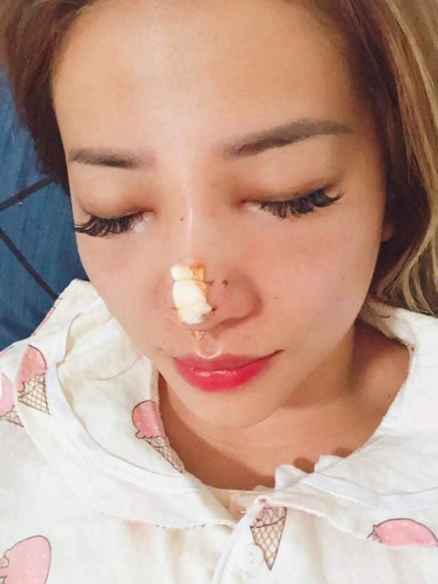 MiA xuất hiện với gương mặt khác lạ, công khai hình ảnh phẫu thuật thẩm mỹ - Ảnh 1.