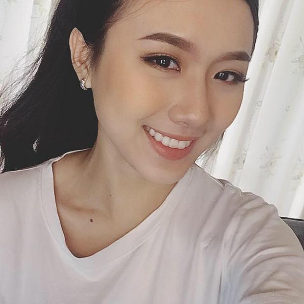 Sức mạnh của niềng răng: Cô bé trở nên xinh đẹp như hot girl sau 4 năm chịu đựng - Ảnh 3.