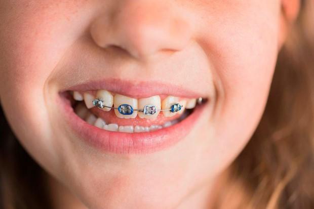 Người phụ nữ phải đi cấp cứu do mảnh niềng răng kẹt trong bụng suốt 10 năm - Ảnh 4.