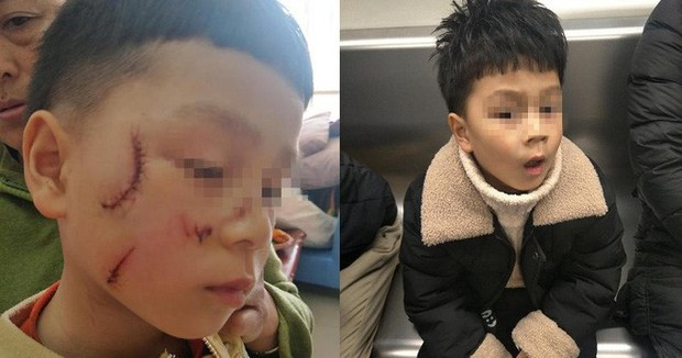 Cửa kính bất ngờ vỡ vụn, phụ huynh hoảng hốt khi thấy gương mặt của con trai - Ảnh 2.