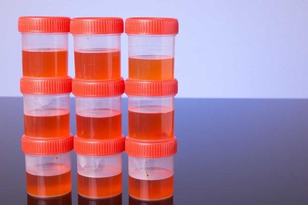 6 dấu hiệu cảnh báo bệnh ung thư bàng quang mà bạn không nên bỏ qua - Ảnh 1.