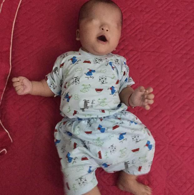 Xót xa em bé không mở được mắt vì 2 mí dính chặt: Nhìn con ê a cười, chân tay quờ quạng mà thương cháy ruột gan - Ảnh 4.