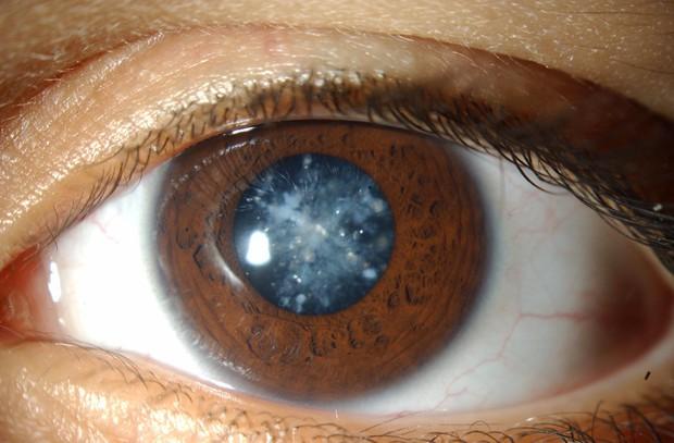 4 căn bệnh ở mắt nếu không chữa trị sớm có thể dẫn tới nguy cơ mù lòa - Ảnh 2.