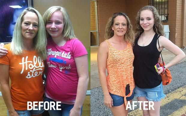 Tự ti với ngoại hình của mình, cô gái 15 tuổi qua đời vì cố nhịn ăn để giảm cân - Ảnh 1.