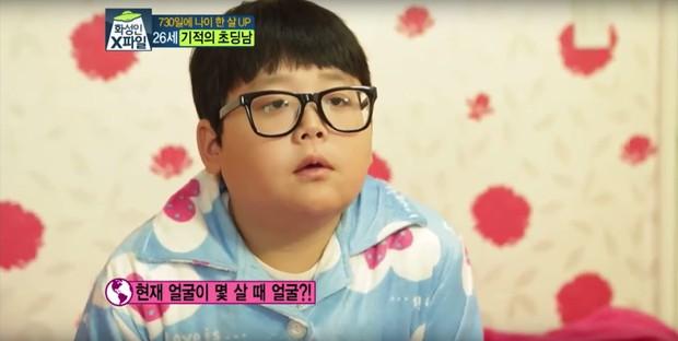 Mắc hội chứng lạ, thanh niên Hàn Quốc dù đã 30 nhưng lại mang hình hài của một cậu nhóc mặt búng ra sữa - Ảnh 2.