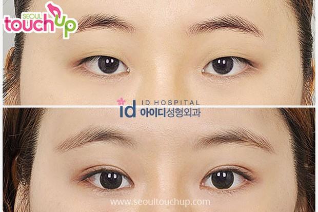 Để có được đôi mắt hai mí hút hồn, các idol Hàn Quốc đều phải trải qua những công đoạn này  - Ảnh 7.