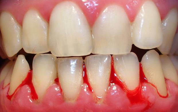 6 dấu hiệu cảnh báo hàm răng của bạn bắt đầu bị lão hóa - Ảnh 2.