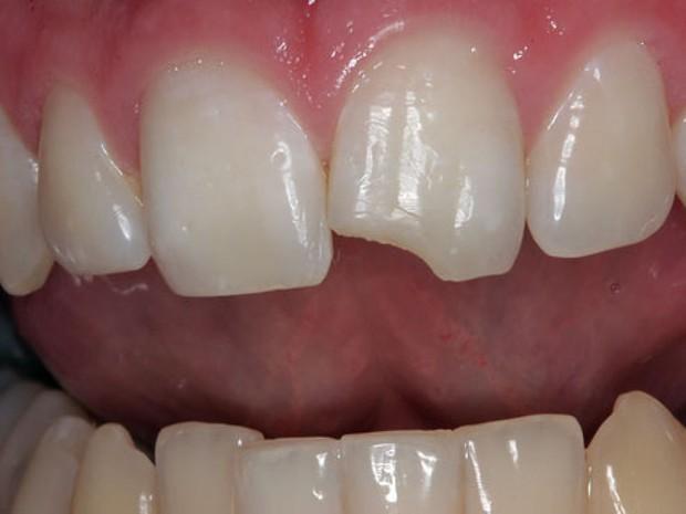 6 dấu hiệu cảnh báo hàm răng của bạn bắt đầu bị lão hóa - Ảnh 3.