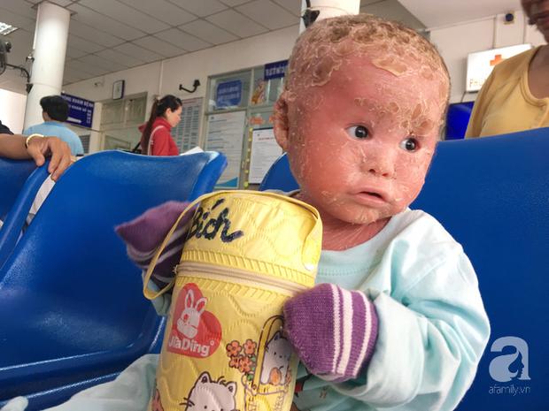 Ca sĩ Lam Trường đến thăm bé Bích - em bé bị vẩy ngứa da trăn trước khi bé nhập viện điều trị - Ảnh 2.