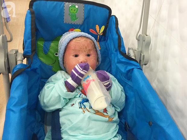 Ca sĩ Lam Trường đến thăm bé Bích - em bé bị vẩy ngứa da trăn trước khi bé nhập viện điều trị - Ảnh 11.