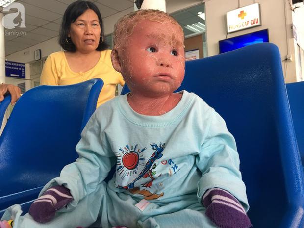 Ca sĩ Lam Trường đến thăm bé Bích - em bé bị vẩy ngứa da trăn trước khi bé nhập viện điều trị - Ảnh 12.