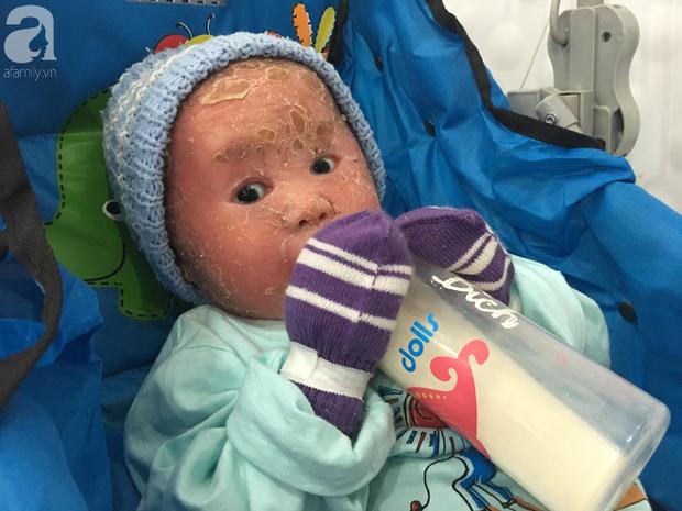 Ca sĩ Lam Trường đến thăm bé Bích - em bé bị vẩy ngứa da trăn trước khi bé nhập viện điều trị - Ảnh 4.