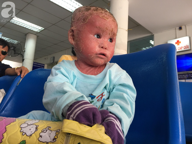 Ca sĩ Lam Trường đến thăm bé Bích - em bé bị vẩy ngứa da trăn trước khi bé nhập viện điều trị - Ảnh 7.