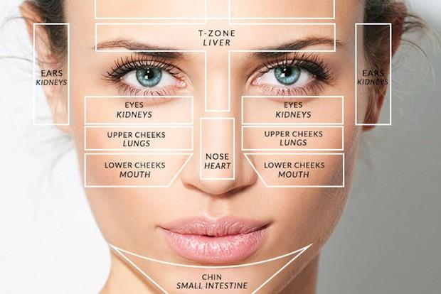 Bất kỳ vị trí mụn nào trên khuôn mặt cũng có thể cảnh báo tình trạng sức khỏe của bạn - Ảnh 1.