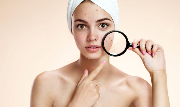 Bất kỳ vị trí mụn nào trên khuôn mặt cũng có thể cảnh báo tình trạng sức khỏe của bạn - Ảnh 3.