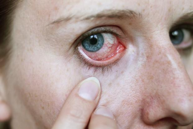 Nhận biết các bệnh dễ mắc qua những triệu chứng bất thường ở đôi mắt - Ảnh 3.