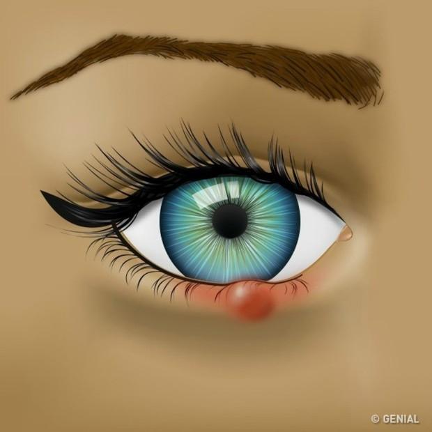 Nhận biết các bệnh dễ mắc qua những triệu chứng bất thường ở đôi mắt - Ảnh 4.