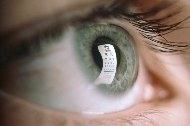 Nhận biết các bệnh dễ mắc qua những triệu chứng bất thường ở đôi mắt - Ảnh 5.