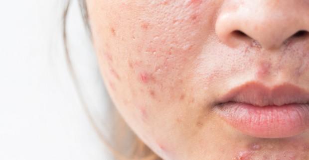Chăm sóc da sau mụn thế nào để không bị sẹo rỗ hay vết thâm? - Ảnh 1.